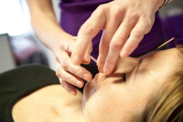 AcupunctureTreatment